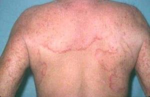 Hình ảnh về bệnh nấm da ở lưng