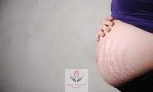 Biểu hiện rạn da khi mang thai bụng và ngực