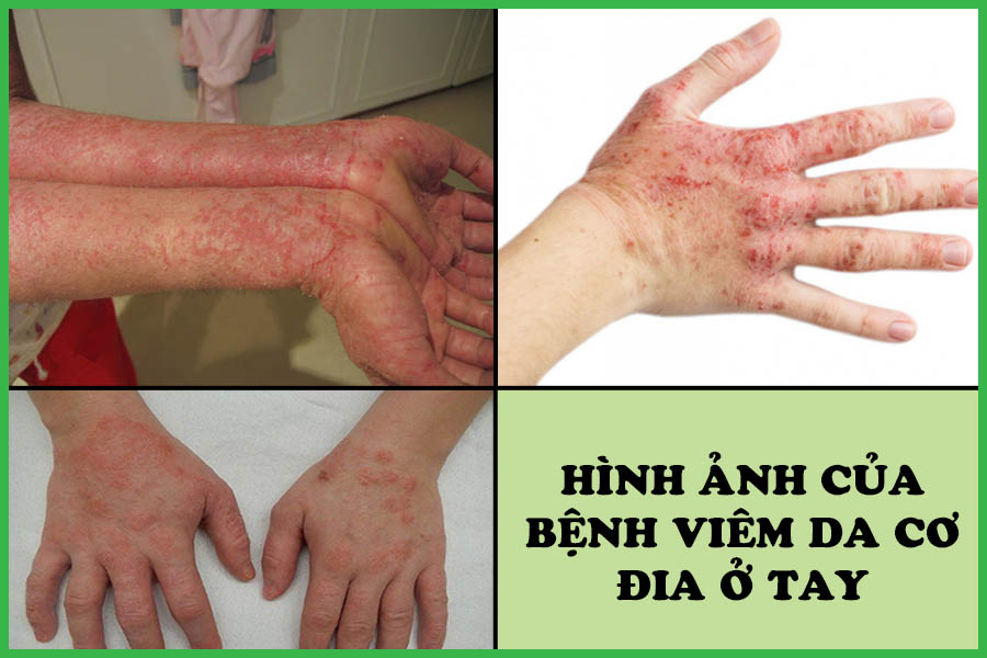Hình ảnh bệnh viêm da cơ địa ở tay