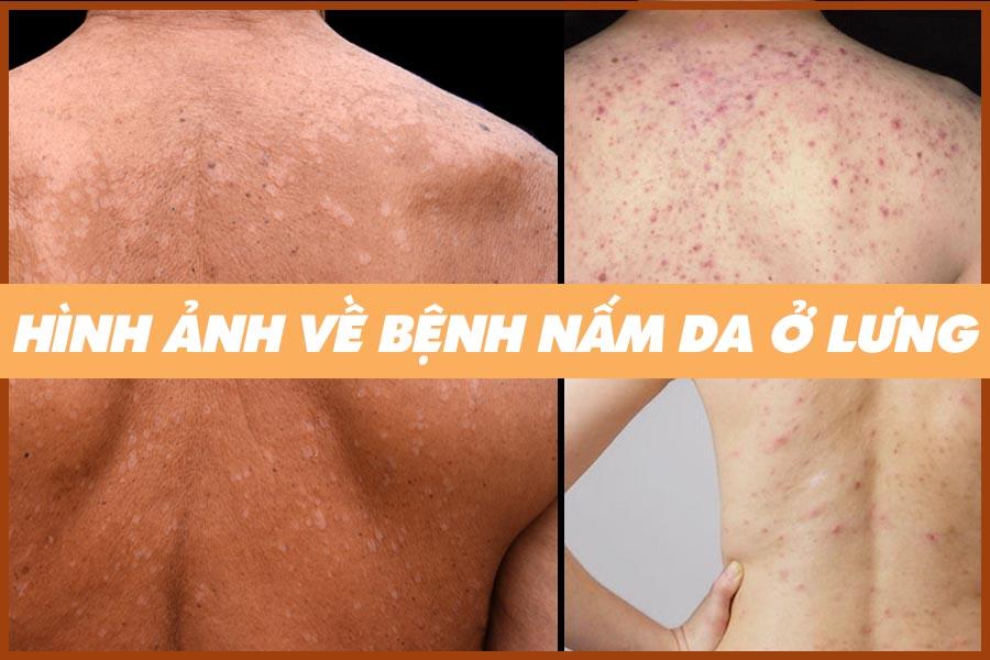 Hình ảnh nấm da ở lưng