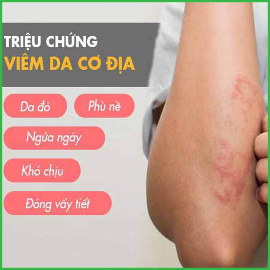 Triệu chứng viêm da cơ địa ở tay