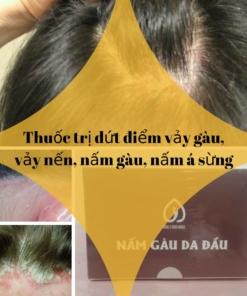 Thuốc trị dứt điểm vảy gàu, vảy nến, nấm tóc, nấm á sừng