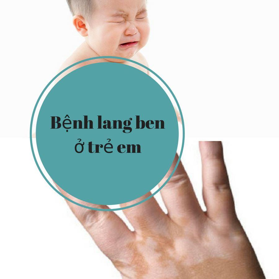 Một số hình ảnh bệnh lang beng ở trẻ em