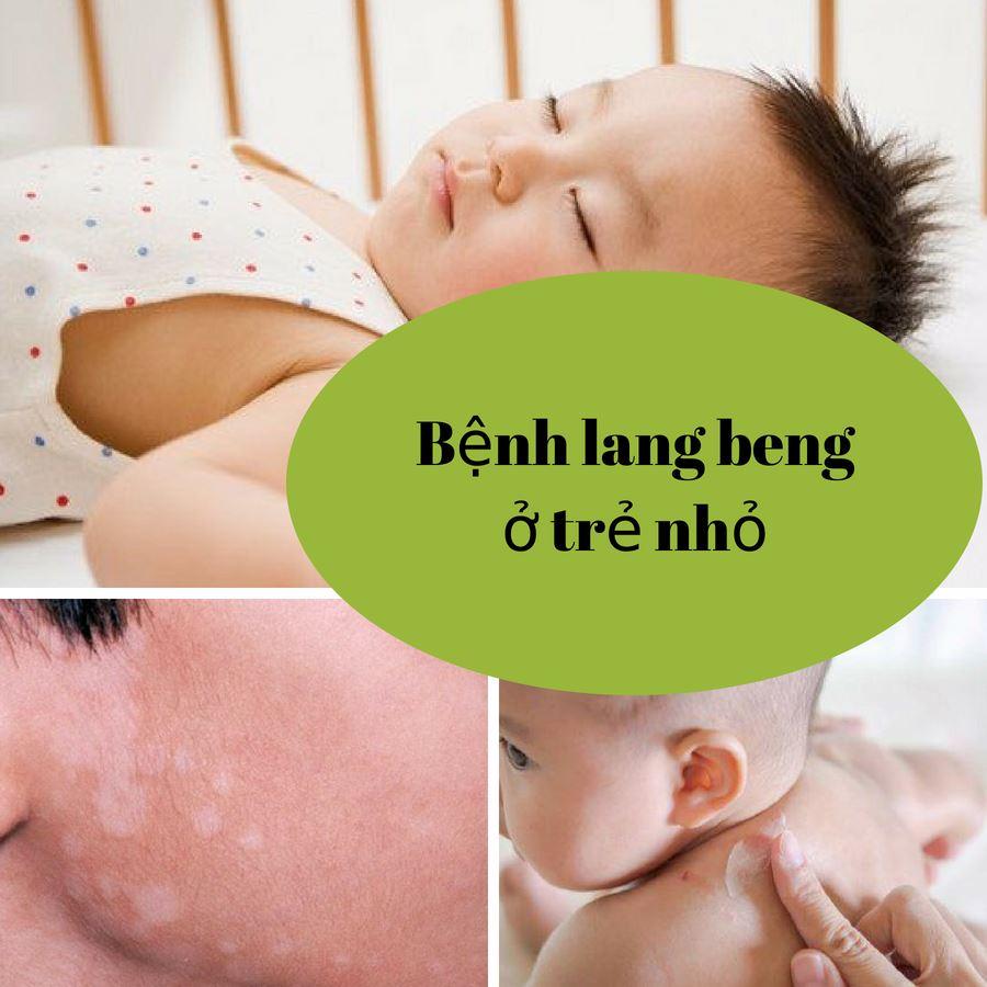 Bệnh lang beng ở trẻ nhỏ