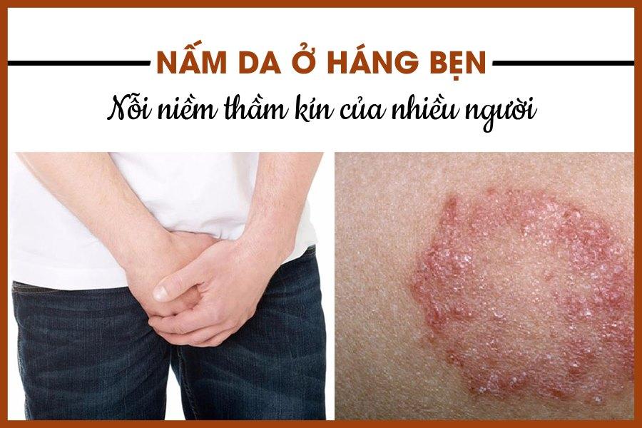 Bệnh nấm da ở háng bẹn gây nhiều khó chịu