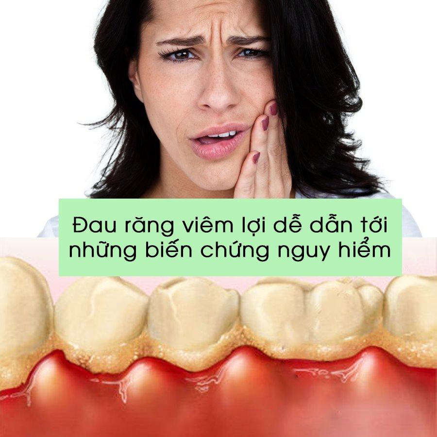 Đau răng viêm lợi dẫn tới những biến chứng nguy hiểm
