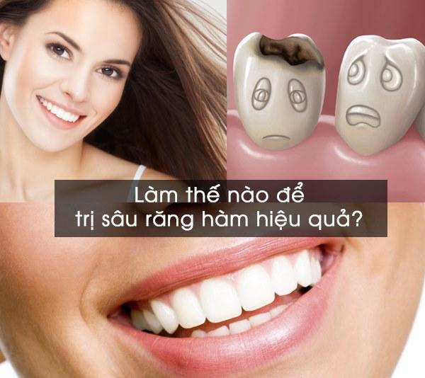 Làm thế nào để chữa bệnh sâu răng hàm hiệu quả