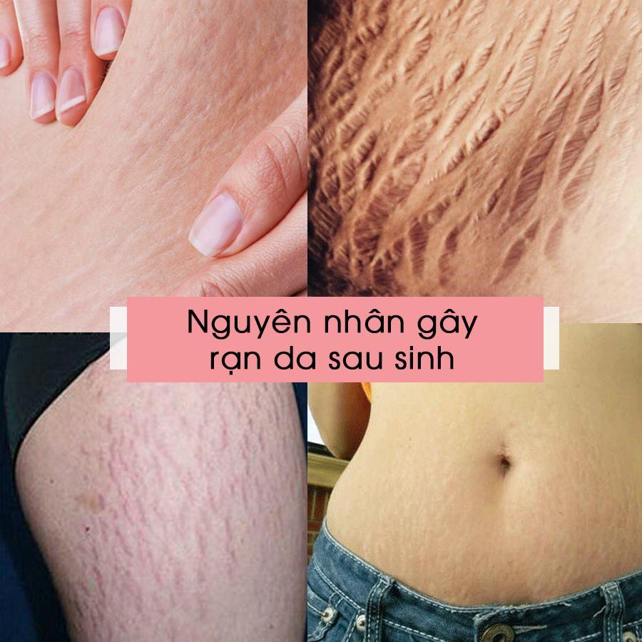 Nguyên nhân gây rạn da sau sinh