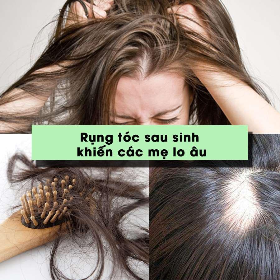 Rụng tóc sau sinh khiến các mẹ lo âu