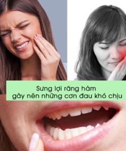Sưng lợi răng hàm gây những cơn đau khó chịu
