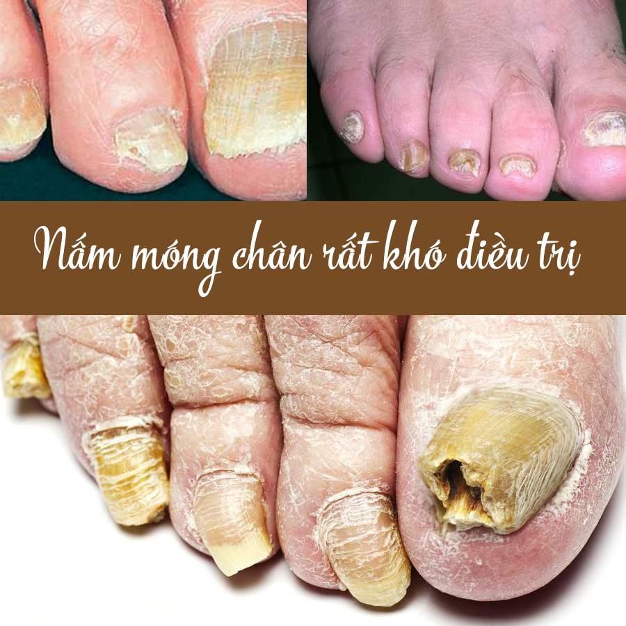 Bệnh nấm móng chân rất khó điều trị
