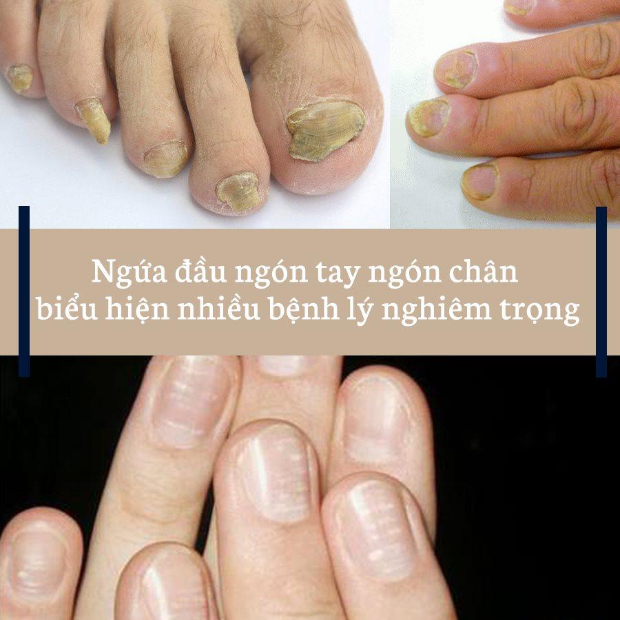 Ngứa đầu ngón tay ngón chân biểu hiện cho nhiều bệnh lý nghiêm trọng