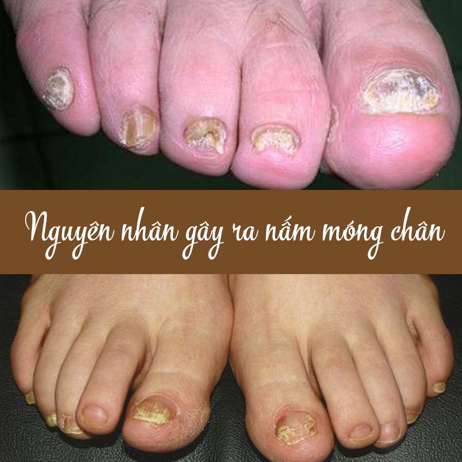 Nguyên nhân gây ra bệnh nấm móng chân