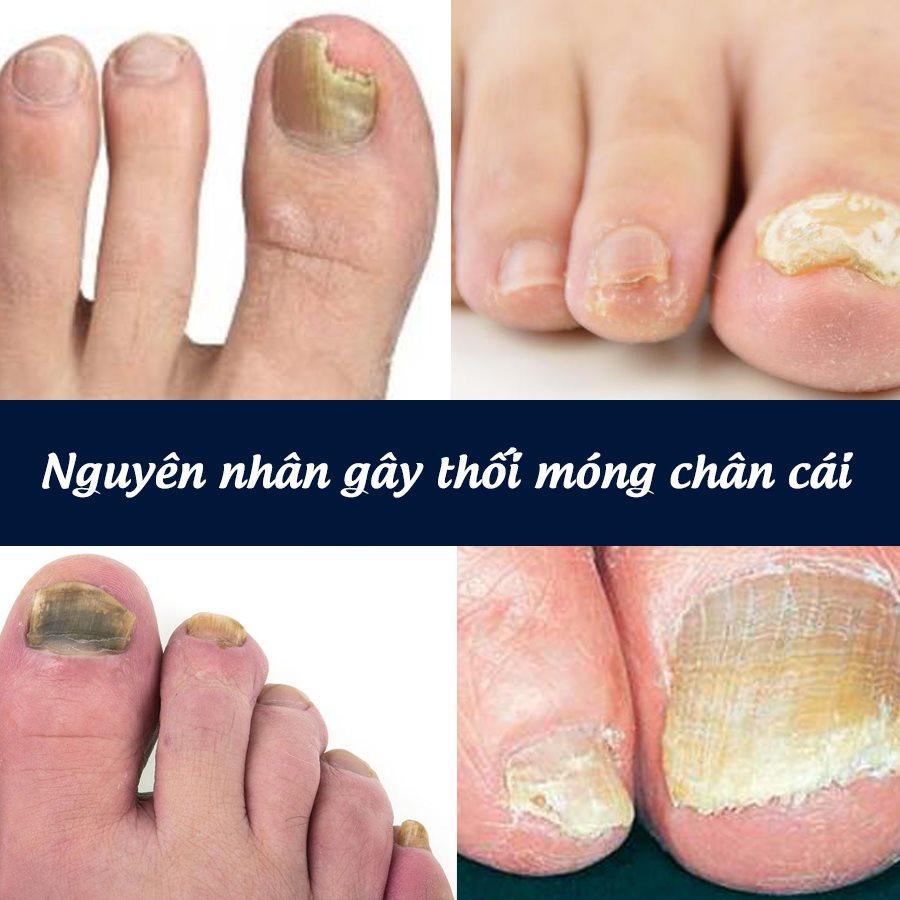 Nguyên nhân gây thối móng chân cái