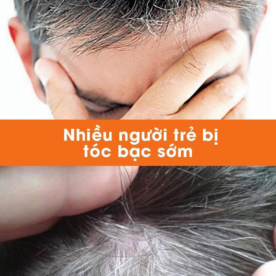 Nhiều người trẻ bị tóc bạc sớm