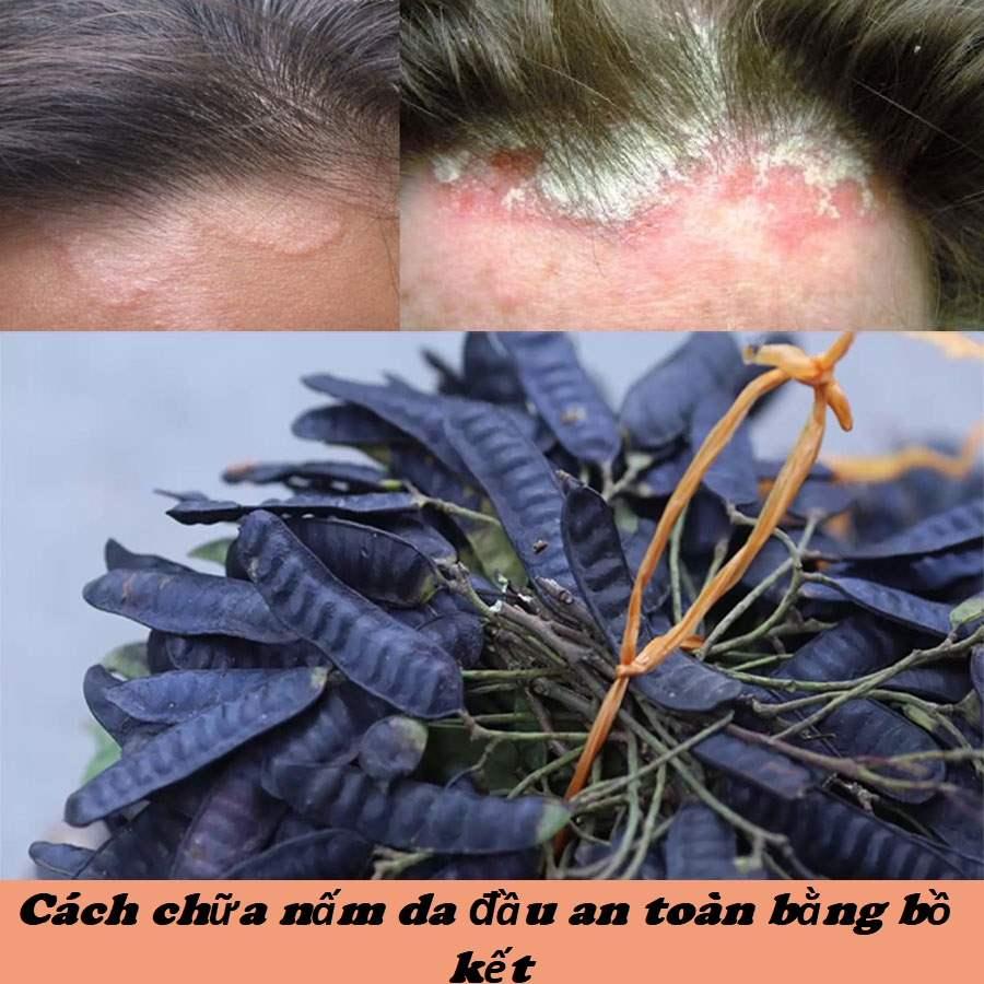 Cách chữa nấm da đầu bằng bồ kết