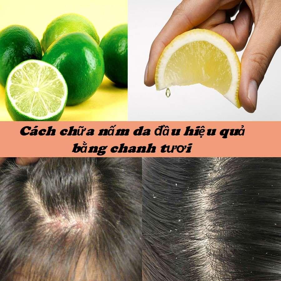 Cách chữa nấm da đầu bằng chanh