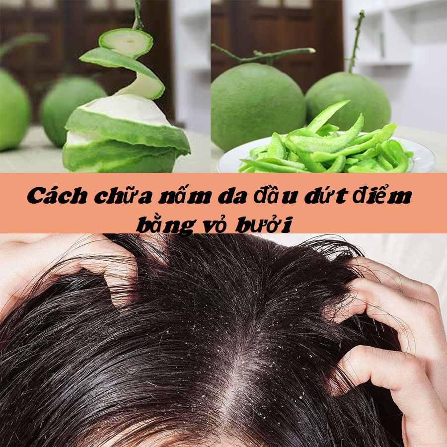 Cách chữa nấm da đầu bằng vỏ bưởi