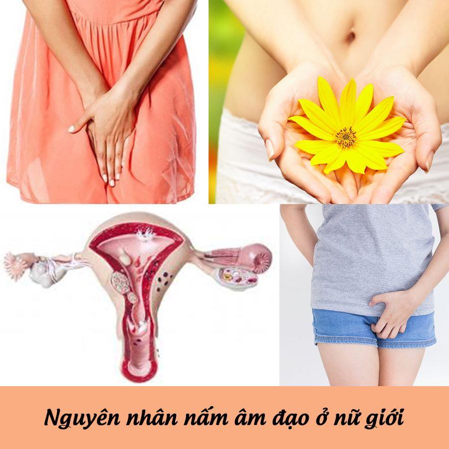 Nguyên nhân bệnh nấm âm đạo ở nữ giới