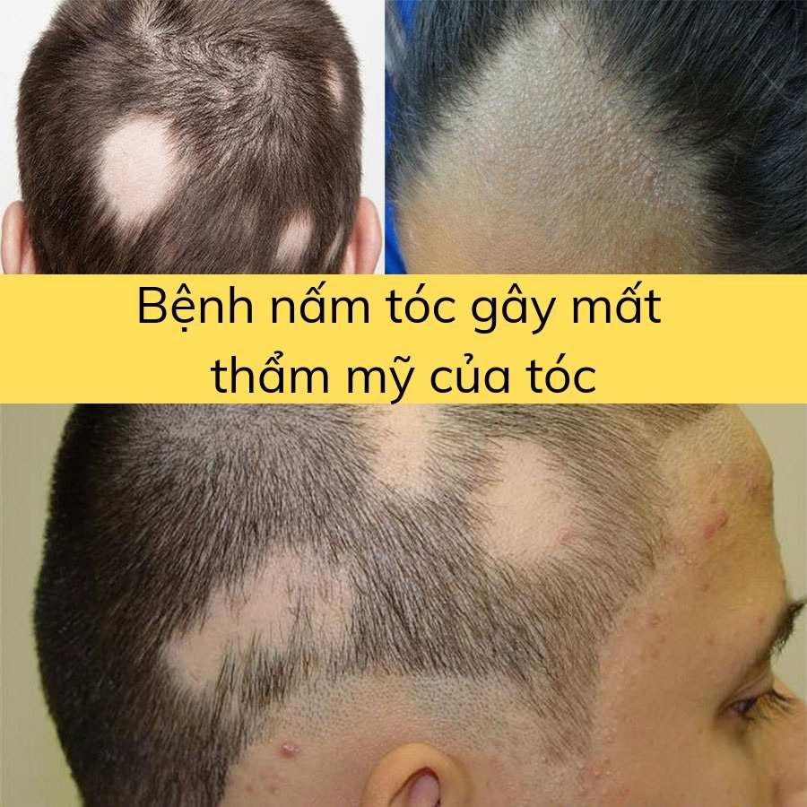 Bệnh nấm tóc gây mất thẩm mỹ của tóc