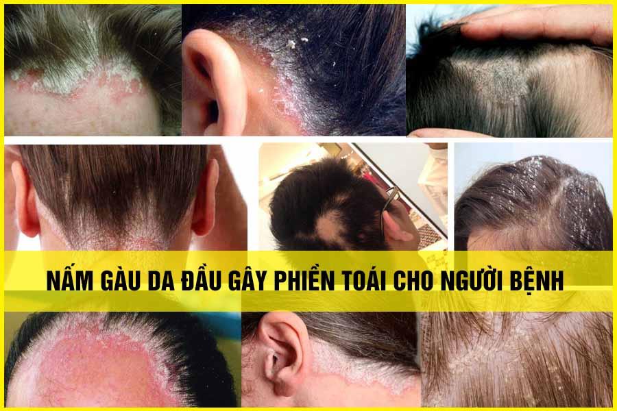 Hình ảnh bệnh nấm gàu da đầu
