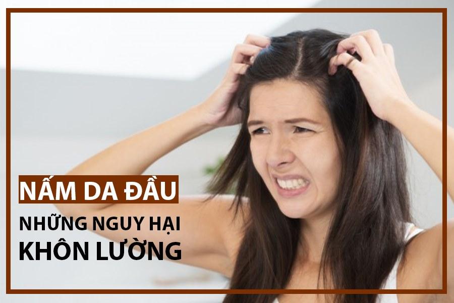Nấm da đầu nguy hại khôn lường