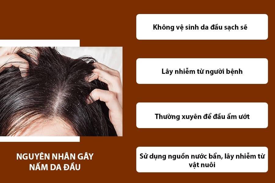 Nguyên nhân gây nấm da đầu