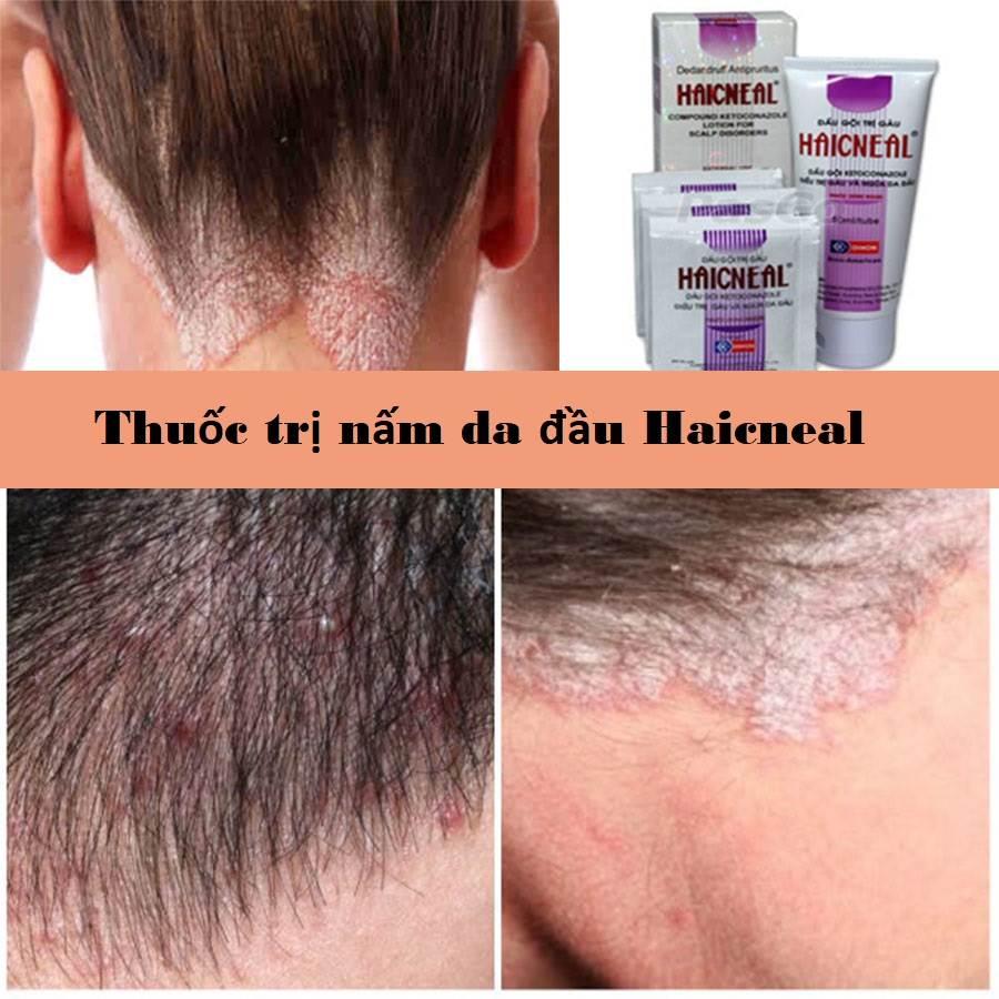 Thuốc trị nấm da đầu Haicneal