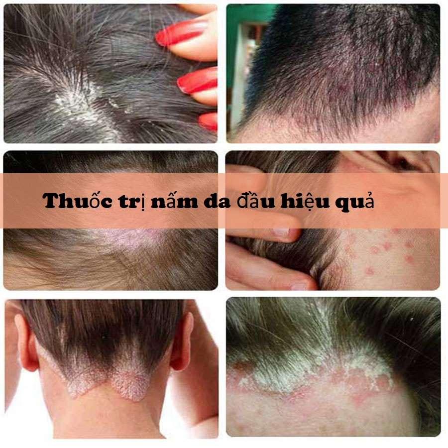 Thuốc trị nấm da đầu hiệu quả