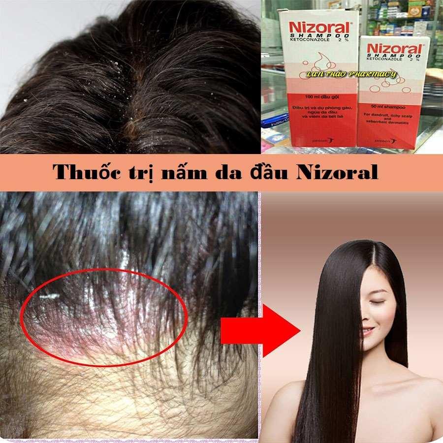 Thuốc trị nấm da đầu Nizoral