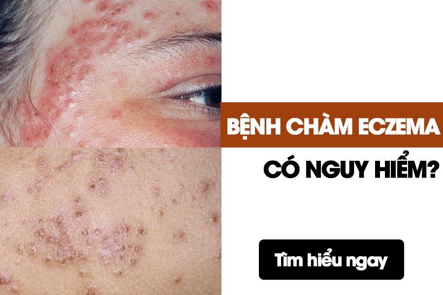 Bệnh chàm eczema có thể gây nhiều biến chứng