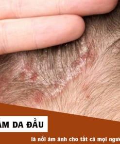 Bệnh nấm da đầu là gì