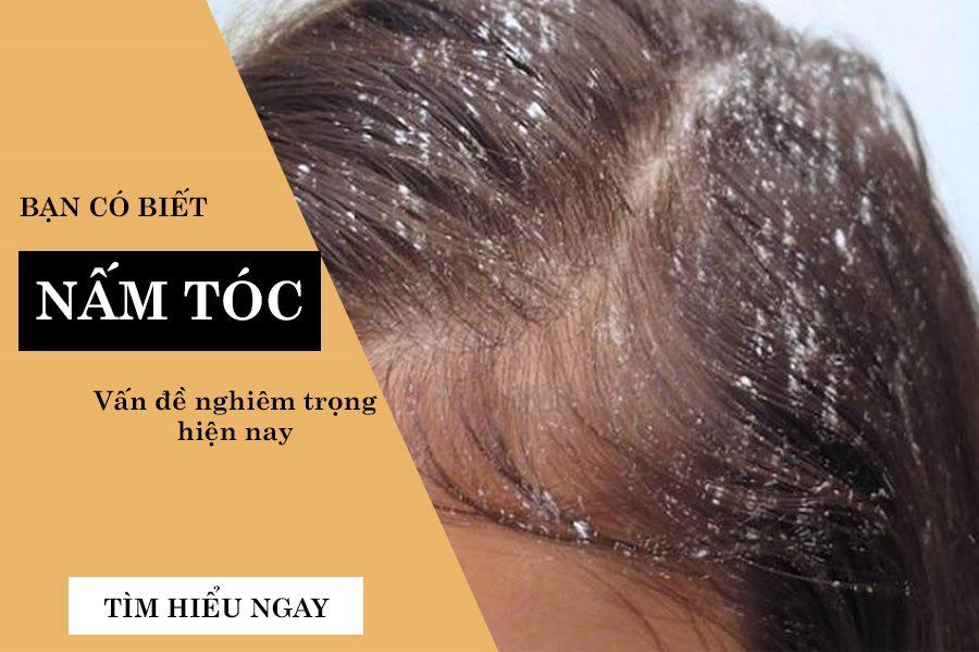 Cách chữa bệnh nấm tóc