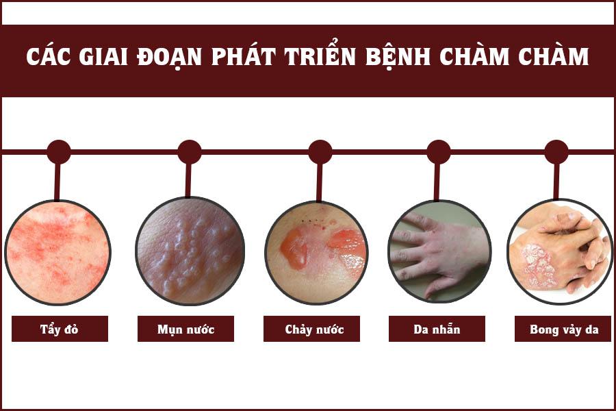 Các giai đoạn phát triển bệnh chàm