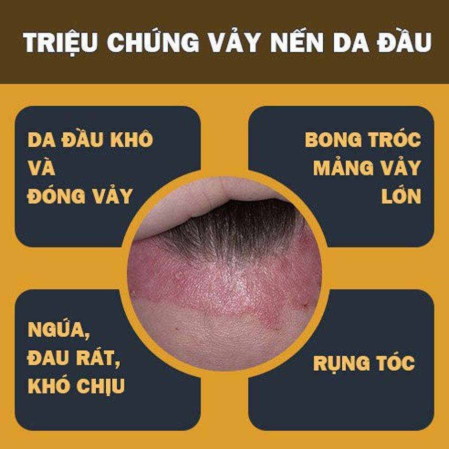 Dấu hiệu bệnh vảy nến da đầu