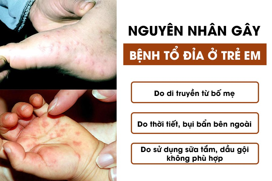 Nguyên nhân gây bệnh tổ đỉa ở trẻ em