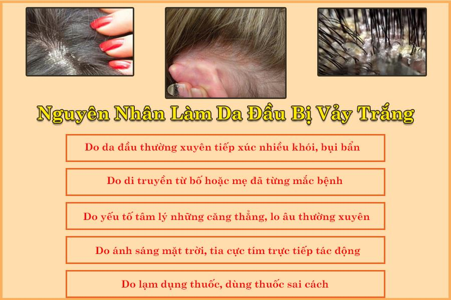 Nguyên nhân làm da đầu bị vảy trắng