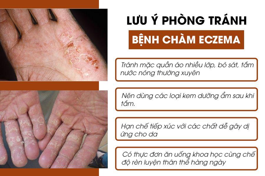 Phòng tránh bệnh chàm eczema