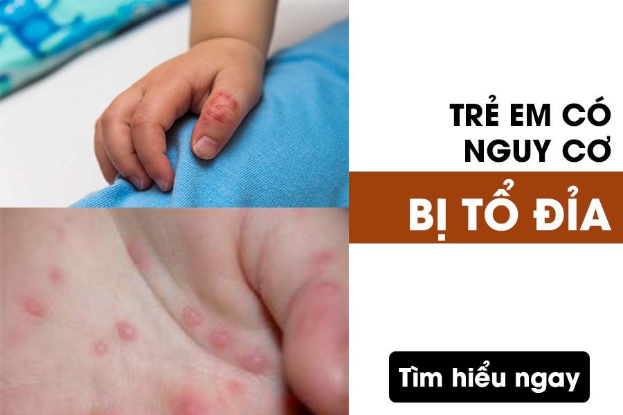 Trẻ em có nguy cơ bị tổ đỉa cao