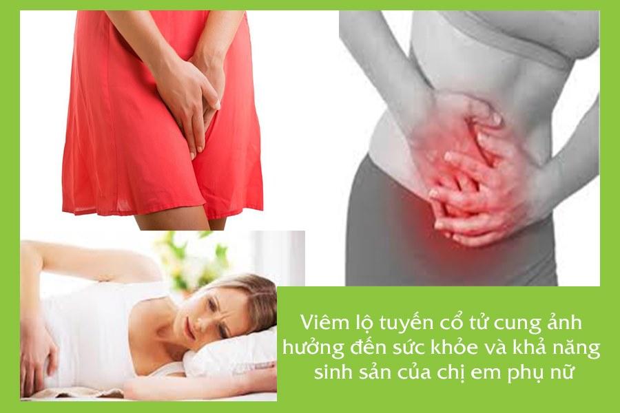 Viêm lộ tuyến cổ tử cung ảnh hưởng đến sức khỏe