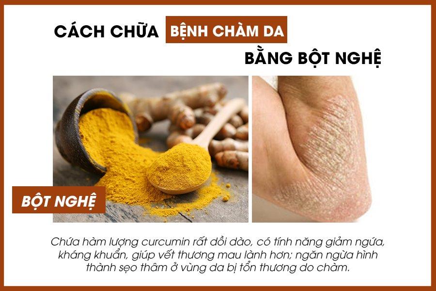 Bài thuốc chữa bệnh chàm da bằng bột nghệ
