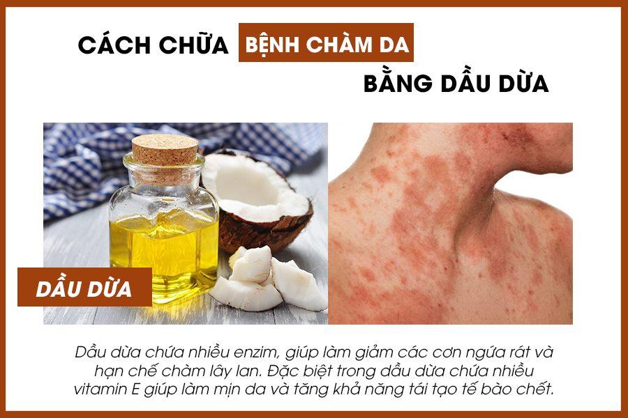 Bài thuốc chữa bệnh chàm da bằng dầu dừa