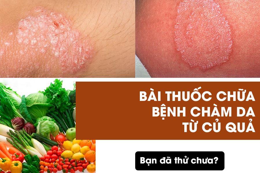 Bài thuốc chữa bệnh chàm da bằng rau củ