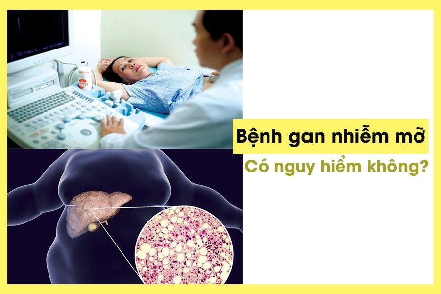 Bệnh gan nhiễm mỡ thường gặp ở mọi đối tượng