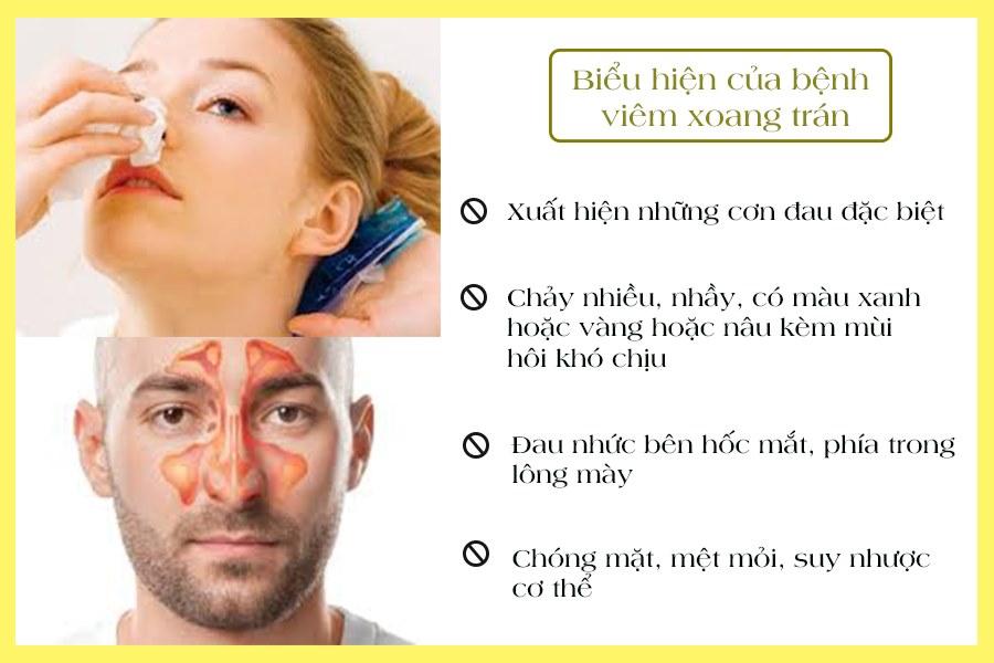Biểu hiện bệnh viêm xoang trán
