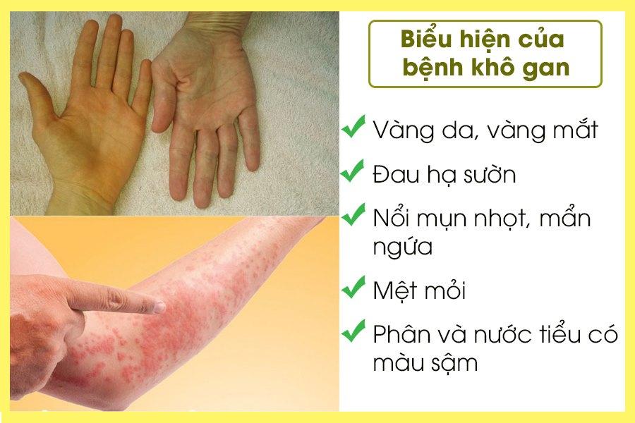 Biểu hiện của bệnh khô gan