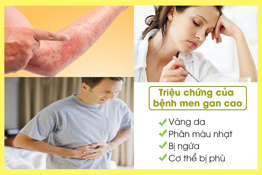Dấu hiệu quả bệnh men gan cao