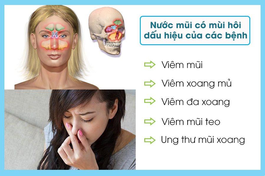 Nước mũi có mùi hôi là bệnh gì