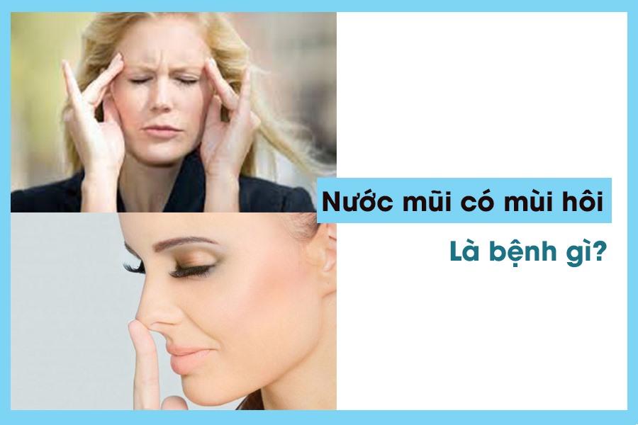 Nước mũi có mùi hôi là triệu chứng bệnh nguy hiểm