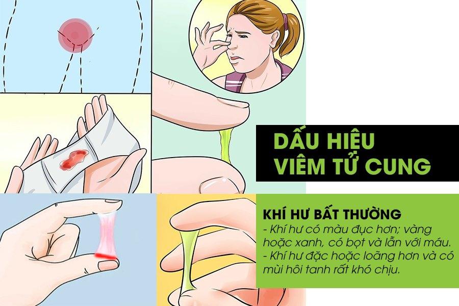 Ra khí hư bất thường là dấu hiệu viêm tử cung